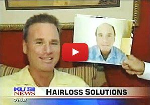 Dermatex Men's Hair Replacement San Diego California