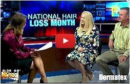 female hair loss solutions san diego california