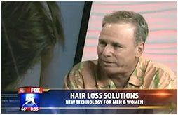 Hair Loss Solutions Men and Women San Diego and Orange County