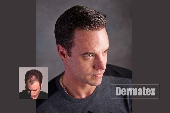 mens hair loss restoation san diego orange county