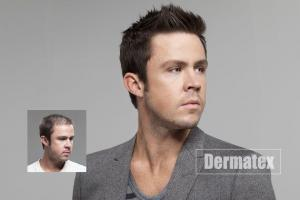 mens hair replacement san diego orange county