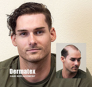 Men's Non-Surgical Hair Replacement - San Diego, CA
