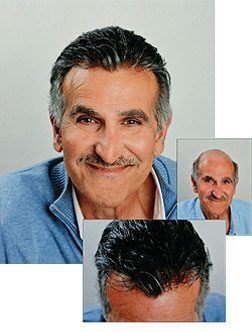 Hair Restoration Solutions for Men Orange County California