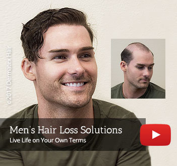Men's hair replacement restoration San Diego CA