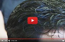 mens non-surgical hair loss restoration san diego california