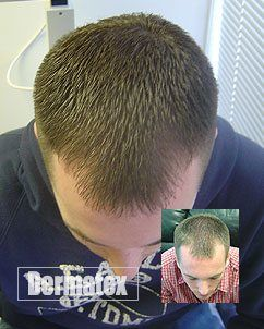 laser hair restoration therapy treatment