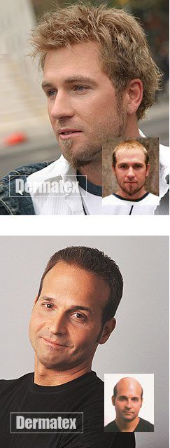 San Diego Orange County Mens Hair Replacement