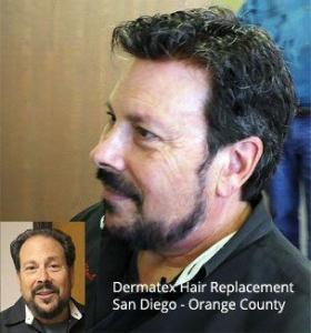 Men's Hair Replacement Technology Orange County San Diego CA