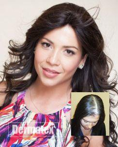 Balding & Hair Loss Orange County CA