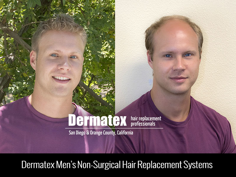 San Diego Mens Hair Replacement - Orange County