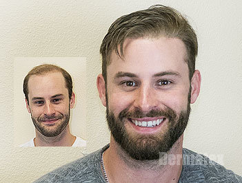 Men's Hair Restoration Replacement San Diego CA