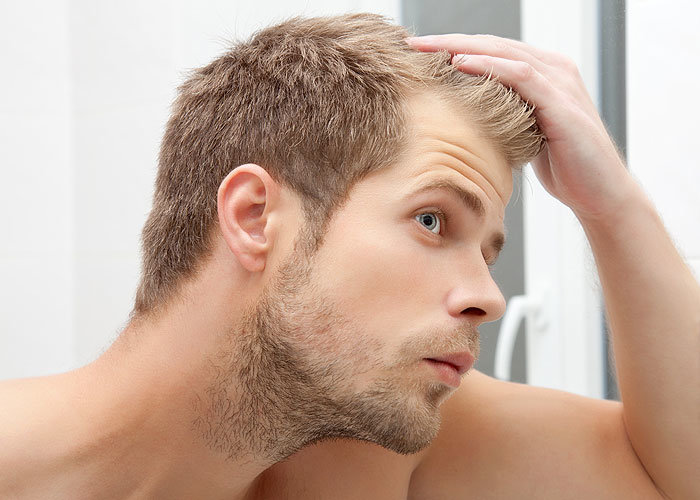 hair loss causes for men and women