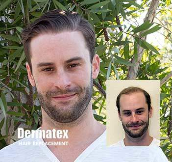 mens hair loss restoration replacement san diego CA