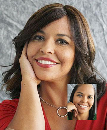 female hair loss replacement orange county san diego ca